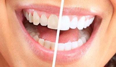 otbelivanie-zubov